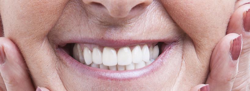 protesi dentale fimodent saronno