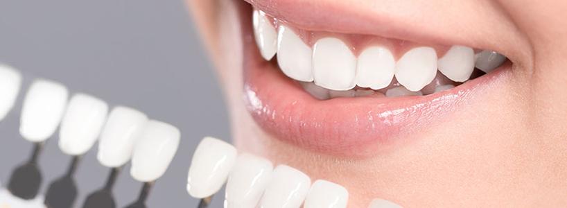 sbiancamento denti studio fimodent saronno